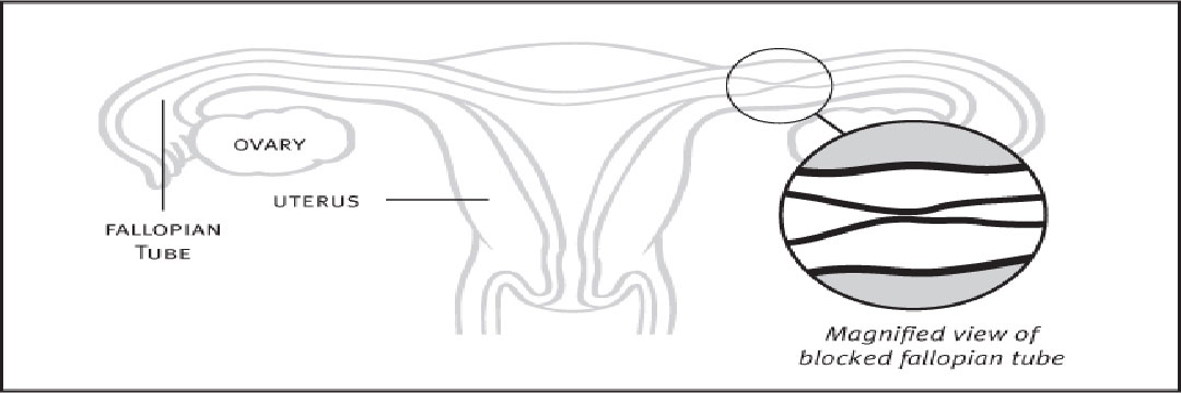 Tubal Surgery or IVF?