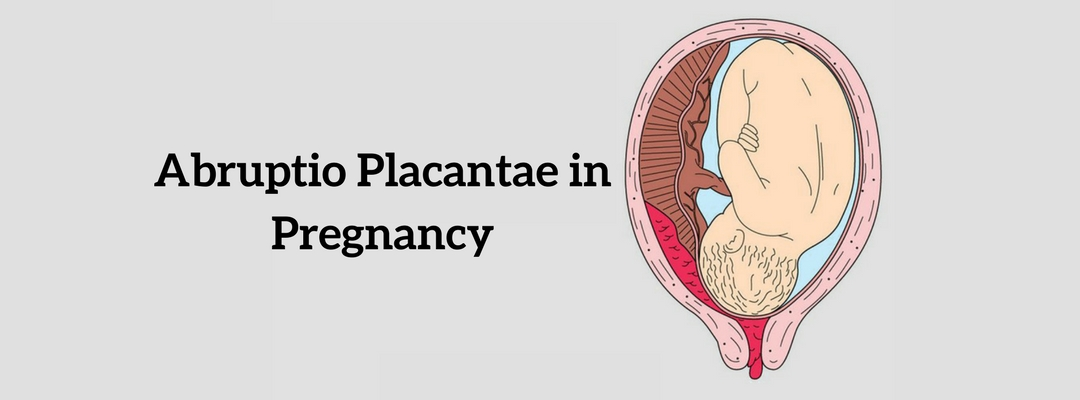 Watch out for Abruptio Placantae in Pregnancy