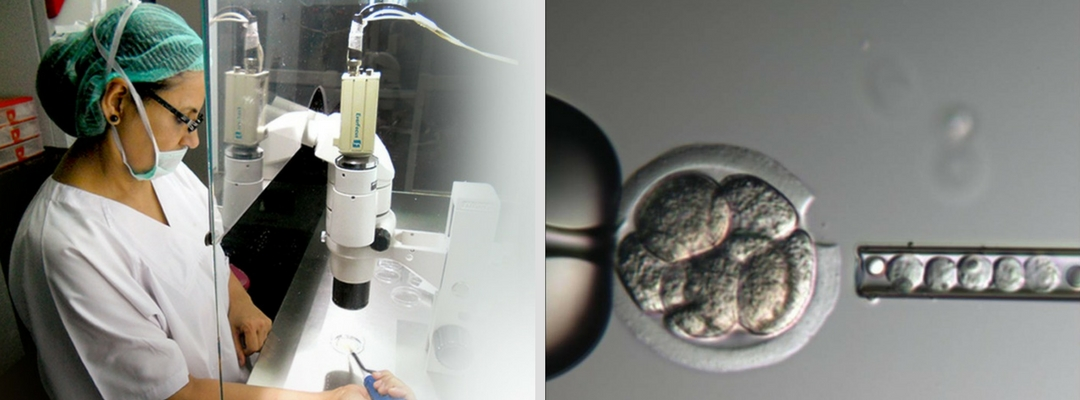 Assisted Hatching Technique at International Fertility Centre