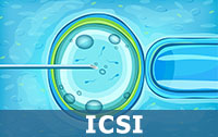 Intracytoplasmic Sperm Injection (ICSI)